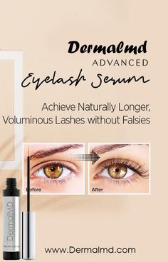 The dream of having the perfect eyelashes has finally been realized even without the use of extensions. DermalMD's serum is one of the most effective serum around. DermalMD's serum grows ultra-lush eyelashes as guaranteed with healthful ingredients to safeguard the eyelash from external irritants to keep them from breakage. Perfect Eyelashes, How To Grow Eyelashes, Natural Eyelashes, Eyelash Growth Serum, Falsies, Rosacea, Chemistry, Eyes, Lush