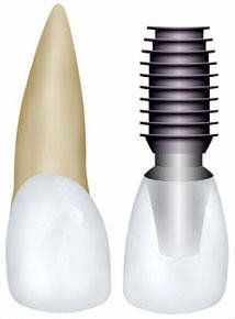 All You Need To Know About Dental Implants  Pinned by www.cosmeticdentistryforsandeigo.com