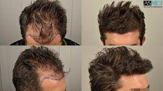 hårtransplantasjon