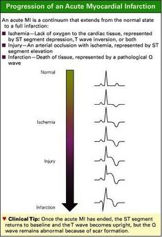 Acute Myocardial Infarction: is a continuum that extends from normal state to a full infarction.