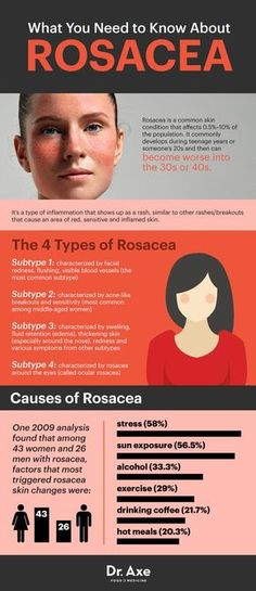 Rosacea Treatment: 6 Natural Ways to Treat - Dr. Axe: