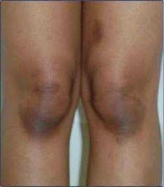 Receita caseira para clarear joelhos, cotovelos e axilas | Cura pela…
