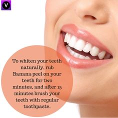 Tired of changing toothpastes for teeth whitening?? Try a natural way now! #teethwhitening, #bananapeel, #gonatural