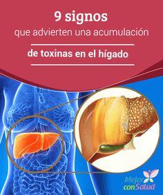 9 signos que advierten una acumulación de toxinas en el hígado  El hígado es uno de los órganos más importantes de nuestro cuerpo, el segundo más grande después de la piel y el responsable de cumplir funciones básicas para la salud.