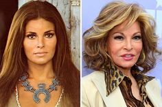 Then And Now: Take A Look At These Celebrities Some Decades Later - Lawyer Att. - Care - Skin care , beauty ideas and skin care tips Rachel Welch, Harmony Rose, Celebrity Plastic Surgery, Celebrities Then And Now, Operation, Beauty Contest, Stars Then And Now, Celebrity Babies, Belleza Natural