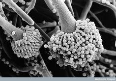 Aspergillus fumigatus, conidia & phialides