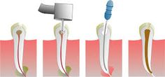 The goals of #RootCanalTreatment are to save the #tooth and allow it to be retained in the mouth for many years in a state of health, function and comfort.