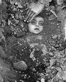 A haunting picture of a victim of Bhopal, Madhya Pradesh gas tragedy in 1984. The people are still fighting for justice after 30 year