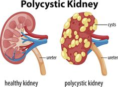 Kidney Failure Causes, Kidney Disease Symptoms, Polycystic Kidney Disease, Polycystic Ovary Syndrome, Kidney Infection, Urinary Tract Infection, Enlarged Kidney, Healthy Kidneys