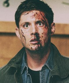 Bloody Dean #SPN #Supernatural #DeanWinchester>>> NO ONE SHOULD LOOK THIS ATTRACTIVE WITH THIS MUCH BLOOD ON THEIR FACE WHAT THE HELL ACKLES.