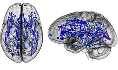Scans show Female brains are wired for social skills and memory, and men's are geared toward perception and coordination