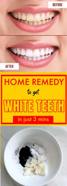 4 Best Home Remedies To Whiten Teeth Naturally - Nagelpilz Hausmittel Teeth Whiting At Home, Home Remedies, Natural Remedies, Get Whiter Teeth, Tooth Sensitivity, Stained Teeth, Teeth Bleaching, Natural Teeth Whitening, Ketogenic Diet For Beginners