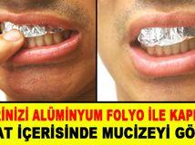 Dişlerinizi Aluminyum Folyo ile Kaplayın