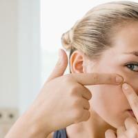 4 manieren om acnelittekens te bestrijden - Beauty - Flair