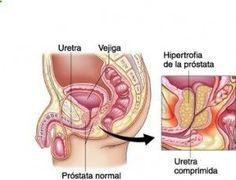 próstata de 4 8 cm es igualdad