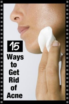 There are many ways to deal with acne including natural methods and professional treatments. Cystic Acne Remedies, Psoriasis Remedies, Natural Acne Remedies, Home Remedies For Acne, Leiden, Homemade Acne Mask, Best Acne Treatment, Acne Treatments, Natural Home Remedies