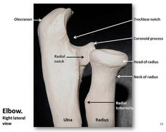 Bones of the elbow lateral view with labels - Appendicular Skeleton Visual Atlas page 13 Elbow Anatomy, Anatomy Bones, Gross Anatomy, Human Body Anatomy, Human Anatomy And Physiology, Anatomy Flashcards, Human Body Systems, Guided Practice, Medical Anatomy