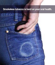 The Effects Of Smokeless Tobacco On Your Smile | San Pedro California Dentist