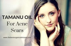 Have acne scars? Wondering if tamanu oil can help? Learn how tamanu oil can help regenerate new skin and reduce acne scars. Acne Treatment At Home, Cystic Acne Treatment, Acne Treatments, Aloe Vera, Overnight Acne Remedies, Oils For Scars, Greasy Skin, Acne Oil, Top