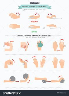 """stock-vector-carpal-tunnel-syndrome-infographic-vector-illustration-300172181.jpg (1152×1600)  <a class=""""pintag searchlink"""" data-query=""""%23carpal"""" data-type=""""hashtag"""" href=""""/search/?q=%23carpal&rs=hashtag"""" rel=""""nofollow"""" title=""""#carpal search Pinterest"""">#carpal</a> tunnel syndrome  #home remedies for carpal tunnel #get rid of carpal tunnel"""