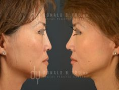 Before and After Revision Asian Rhinoplasty with rib cartilage and DCF (diced cartilage fascia). #Rhinoplasty #septoplasty #nosejob #plasticsurgery #asianrhinoplasty #beverlyhills #drdonyoo