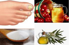 Toenail Fungus - Treatment, home remedies, information http://www.toenailfungus.biz/