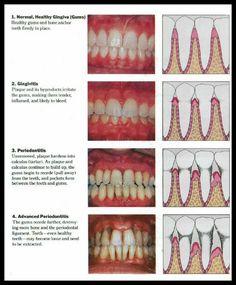 Diagram showing the progression of (gum disease) Periodontal Disease. (Video explaining Periodontal Disease)