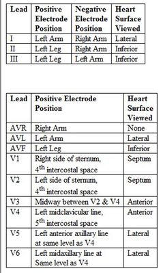 ekg lead placement | 12 Lead Placement and Heart Surface Viewed - Click to enlarge