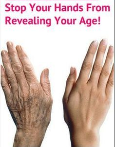 Your hands can also denounce how old you are, so make them look younger with these easy steps.