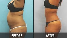 Want to have a smaller stomach, a thinner waist and a body cleansed of fat? You're in the right place!  There's one recipe that just makes a miracle for the stomach, both from the outside and from the inside for just three days. The most important thing is that this vitamin bomb cleans fatty …