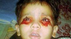 Đau xót cô bé 3 tuổi hàng ngày khóc ra máu