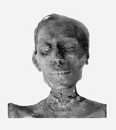 The ill appearance of Thutmose IV's mummy