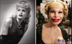27 Celebrity Plastic Surgery Gone Wrong