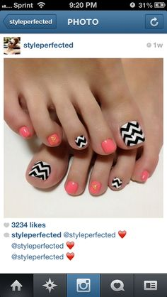 Pink & Chevron Toes!  If you have a toenail fungus problem, come to Beautiful Toenails in Southfield, MI!  Call (248) 945-1000 TODAY to set up an appointment with us or visit our website www.toenailfungu.pro to find out more information!