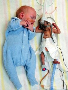 Twins - Byron and Lincoln Ryman were born within a minute of each other, first Byron (3lb 6oz) was precisely three times bigger than his brother. Eleven weeks premature, both boys were given a little chance of survival – particularly Lincoln, weighing only 1lb 2oz at birth.    Now they are five years old, are doing well, thanks to the dedicated staff at the Royal Hospital for Women in Sydney.