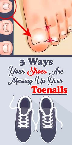 3 Ways Your Shoes Are Messing Up Your Toenails - Women Daily Magazine Natural Remedies For Allergies, Natural Headache Remedies, Natural Remedies For Anxiety, Healthy Teeth, Get Healthy, Healthy Tips, Health And Wellness, Health Fitness, Stronger Teeth