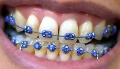 How much do braces cost? Here we look at the various different types of braces available in the UK and discuss how much braces for adults cost. Dark Blue Braces, Fake Braces, Braces Cost, Braces Smile, Braces Tips, Dental Braces, Teeth Braces, Dental Care, Teeth Dentist