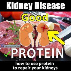 #kidneydisease #kidneyfailure #kidneydiseaseawareness #chronickidneydisease #dialysis  Tap the picture to watch the full video Kidney Dialysis, Renal Diet, Chronic Kidney Disease, Kidney Failure, Protein, Watch, Health, Clock, Salud