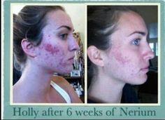 Nerium really helps with acne. Visit michaelford.nerium.com Thanks to Erin Williamson! Nerium Brand Partner!