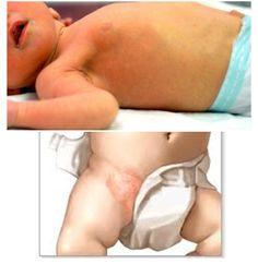 Bebeklerde Pişik Nedenleri Ve Tedavi Yöntemleri - Sağlık Mektebi