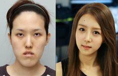 特亜ボイス: 「韓流スターと同じ顔に!」、整形目的の訪韓中国人が急増=韓国ネット「生まれてくる子供の顔を考えろ」