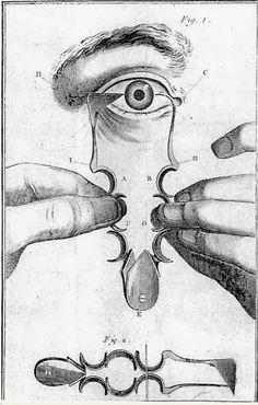 """☤ MD ☞☆☆☆ Jean-Joseph Guérin (1731- ?), Lyonnais, publie en 1769 : """"Essai sur les maladies des yeux"""", imprimé à Lyon chez Louis-Joseph Berthoud, dans lequel il décrit un couteau pour opérer la cataracte. On pique avec la branche de droite et on tranche avec celle de gauche. [Histoire de la santé et des instruments médicaux: Les nouveaux instruments lyonnais de la chirurgie de la cataracte au XVIIIe siècle.]"""