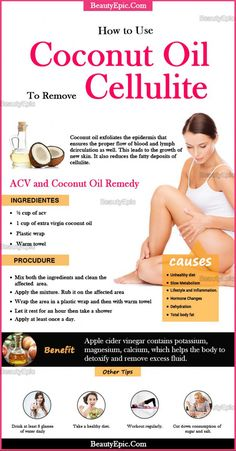 Natural Remedies For Skin how to use coconut oil for cellulite - Those ugly and embarrassing dimples on thighs are caused due to fat pushing through the tissues. Here we will discuss how to use coconut oil for cellulite Combattre La Cellulite, Coconut Oil Cellulite, Causes Of Cellulite, Cellulite Exercises, Cellulite Cream, Cellulite Remedies, Reduce Cellulite, Coconut Oil Uses, Coconut Oil Beauty