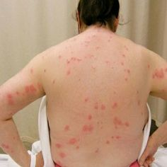 Natural Cure For Bed Bugs - Wish I knew then what I know now when i was traveling for work! lol It was horrible. I have fears of hotels now no matter how clean and beautiful.