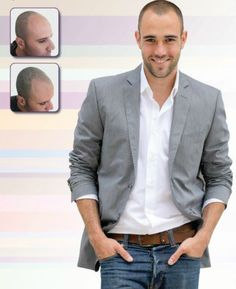 Look years younger with Scalp Micro pigmentation! #renewyourself #baldness #hairloss #scalpaesthetics