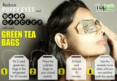 Using Green tea bags can be a relaxing remedy for under eye puffiness and dark circles. : Using Green tea bags can be a relaxing remedy for under eye puffiness and dark circles. Ongles Forts, Dry Eyes Causes, Green Tea Bags, Beauty Hacks For Teens, Under Eye Puffiness, Dark Circles Under Eyes, Eye Circles, Eyes Problems, Before Wedding