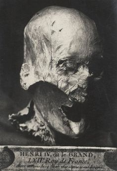 King Henry IV's partially preserved head, which was separated from its body during the French Revolution, when monarchs' graves were desecrated.