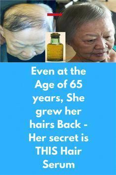 Even at the Age of 65 years, She grew her hairs Back - Her secret is THIS Hair Serum This serum is like a magic potion, which helps stimulate hair growth very fast. No more to hair loss and baldness. This serum is made with old herbal oils that stimulate Why Hair Loss, Oil For Hair Loss, Anti Hair Loss, Hair Loss Women, Prevent Hair Loss, Thinning Hair Remedies, Hair Loss Remedies, Hair Growth Treatment, Hair Growth Oil