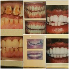 Tooth Tip Tuesday!! Ready to get that smile you've always wanted? Check out our before and after pictures below!! Call today at (301)662-8675 for the smile you deserve  and consult with Dr. Politimi Mantzouranis!! Congrats Jennifer Owens! on last weeks trivia and winner of a Zoom whitening pen!! Keep Smiling and Live Gentle!! #dentist #FrederickMD #TomCruise
