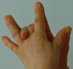 Arthritis, Mantra, Massage, Health, Minden, Health Care, Massage Therapy, Salud